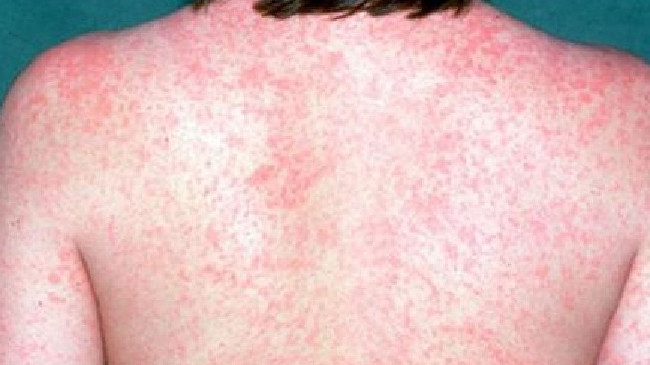 Measles can cause a red and blotchy skin rash that appears on the face and spreads to the rest of the body, Credit: Morning Bulletin.